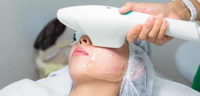 Fotorrejuvenecimiento de la piel