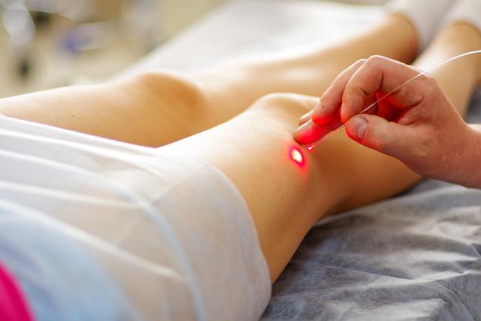 Laserpuntura, Acupuntura moderna