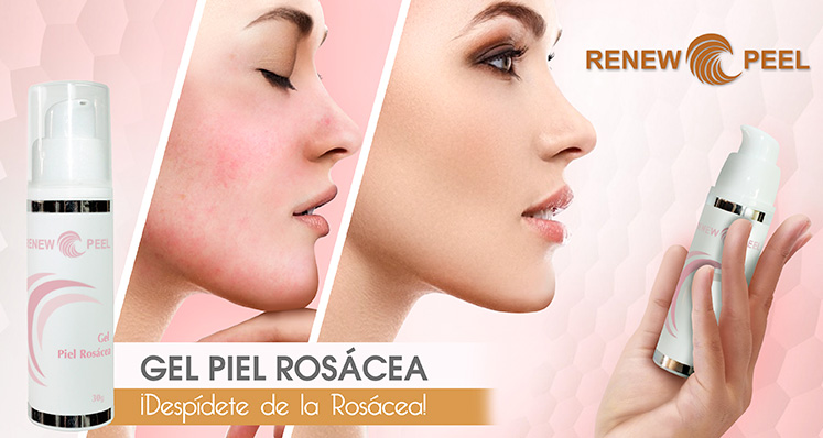 Gel Piel Rosácea by Renew Peel