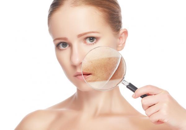 Trastornos de pigmentación de la piel