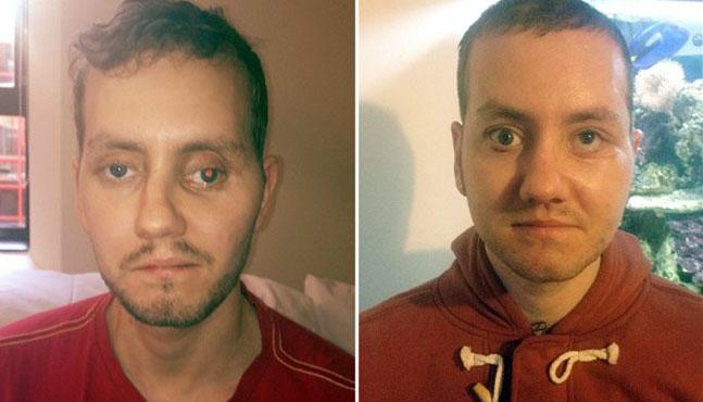 El hombre que recuperó su rostro con impresoras 3D