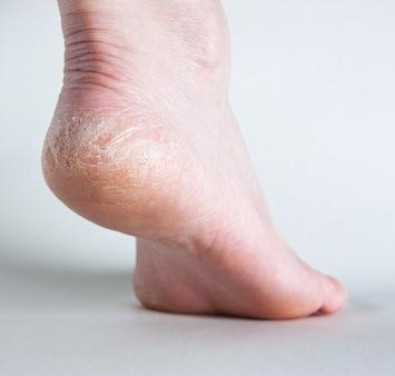 cambios en la piel diabetes mellitus