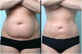 Liposucción con láser: sin grasa ni piel suelta