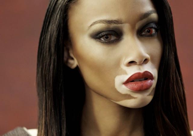 Terapia alternativa para tratamiento del vitiligo