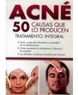 Acné: 50 Causas que lo producen. Tratamiento Integral
