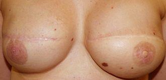 Micropigmentación de Areolas