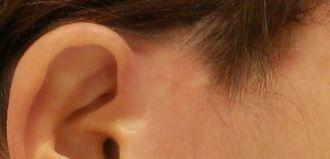Camuflaje de cicatriz auricular