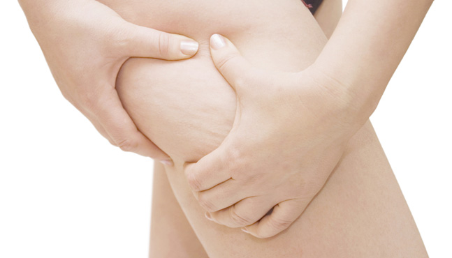 Biomesoterapia: novedoso tratamiento contra la celulitis