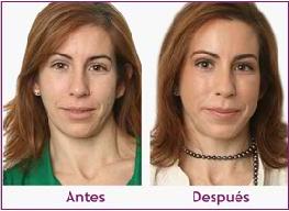 Rejuvenecimiento facial con varios tratamientos conjugados