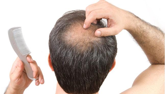 Un nuevo tratamiento para la alopecia: Plasma Rico en Plaquetas (PRP)