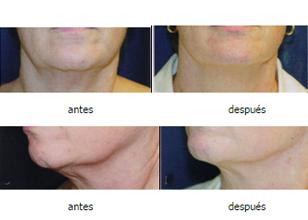 Estiramiento de cara y  cuello con radiofrecuencia