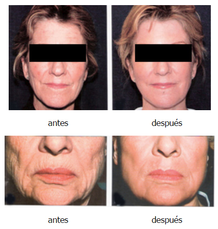 Lifting sin cirugia : Laser Co2 fraxel resurfacing