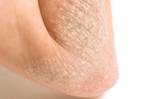 La psoriasis se asocia con la obesidad y la diabetes tipo 2