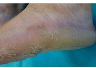 Queratodermia palmoplantar epidermolítica de Vömer