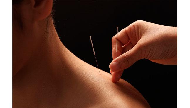 Beneficios de la acupuntura estética