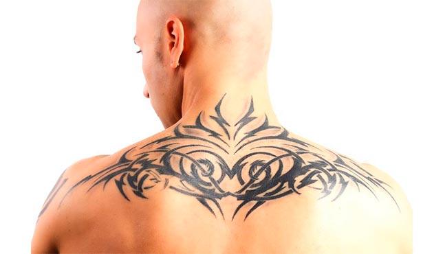 Picosure: Eliminación de tatuajes con láser de picosegundos